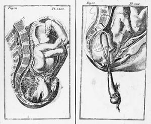 Childbirth And Forceps Delivery Geri Walton